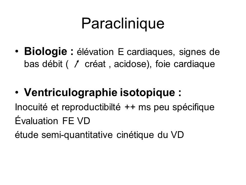 Paraclinique Biologie : élévation E cardiaques, signes de bas débit ( créat, acidose), foie cardiaque Ventriculographie isotopique : Inocuité et reproductibilté ++ ms peu spécifique Évaluation FE VD étude semi-quantitative cinétique du VD