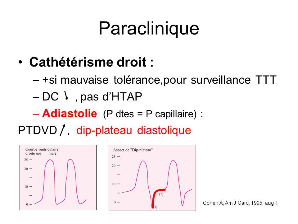 Paraclinique Cathétérisme droit : –+si mauvaise tolérance,pour surveillance TTT –DC, pas dHTAP –Adiastolie (P dtes = P capillaire) : PTDVD, dip-plateau diastolique Cohen A, Am J Card; 1995, aug 1