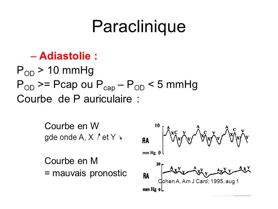 Paraclinique –Adiastolie : P OD > 10 mmHg P OD >= Pcap ou P cap – P OD < 5 mmHg Courbe de P auriculaire : Courbe en W gde onde A, X et Y Courbe en M = mauvais pronostic Cohen A, Am J Card; 1995, aug 1