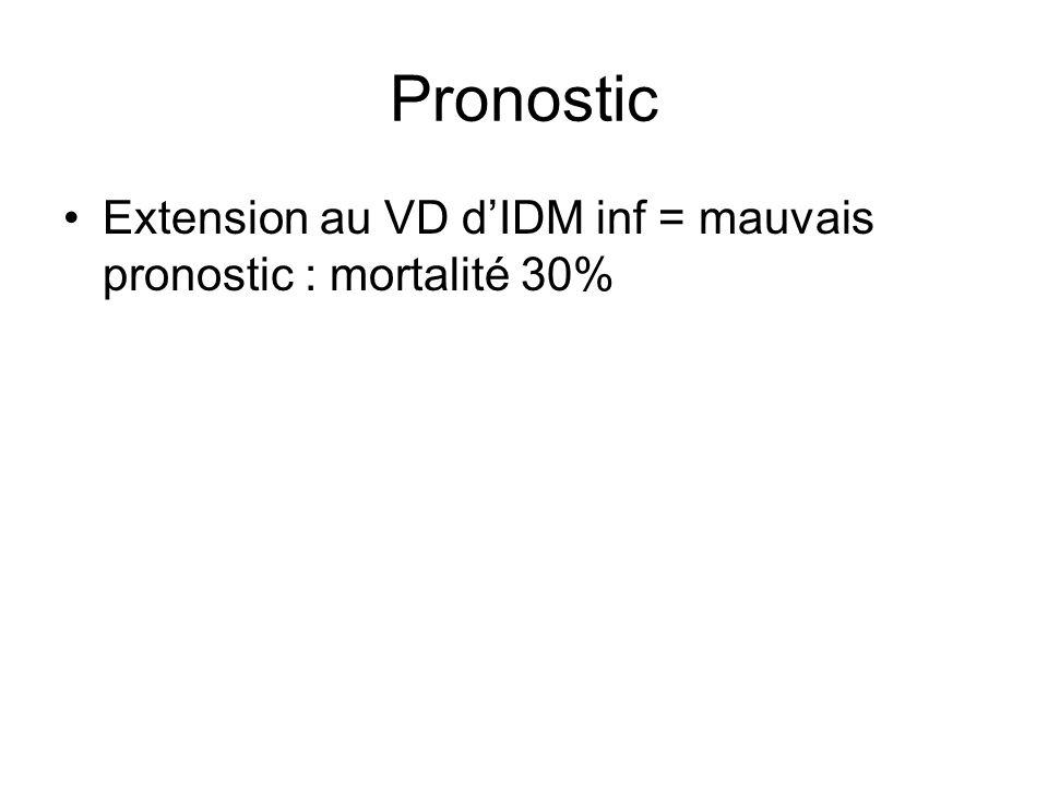 Pronostic Extension au VD dIDM inf = mauvais pronostic : mortalité 30%