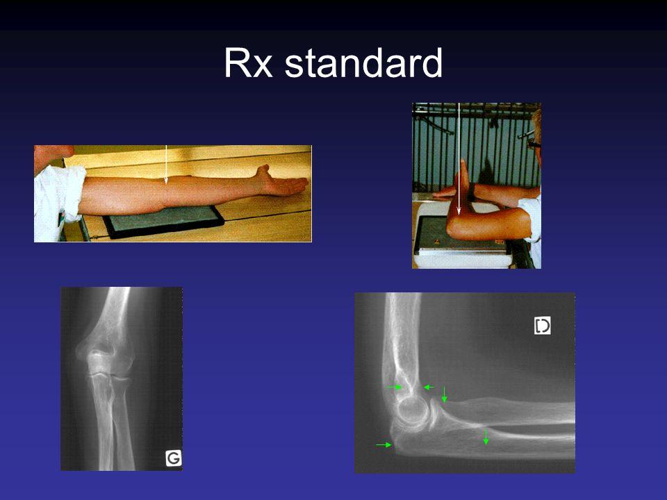 Rx standard