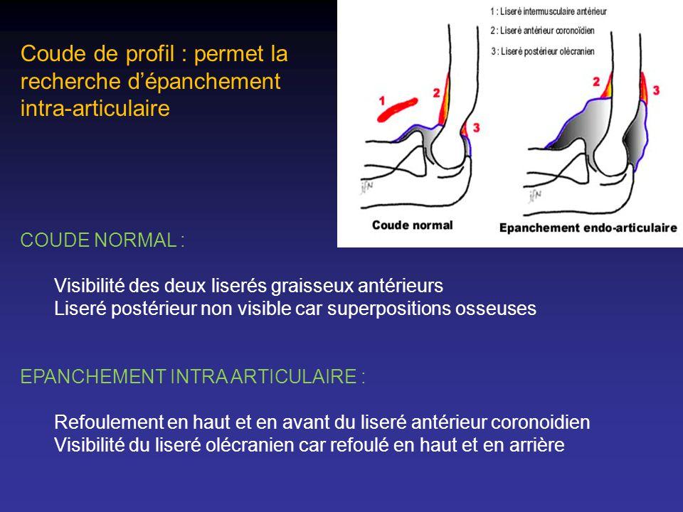 Coude de profil : permet la recherche dépanchement intra-articulaire COUDE NORMAL : Visibilité des deux liserés graisseux antérieurs Liseré postérieur