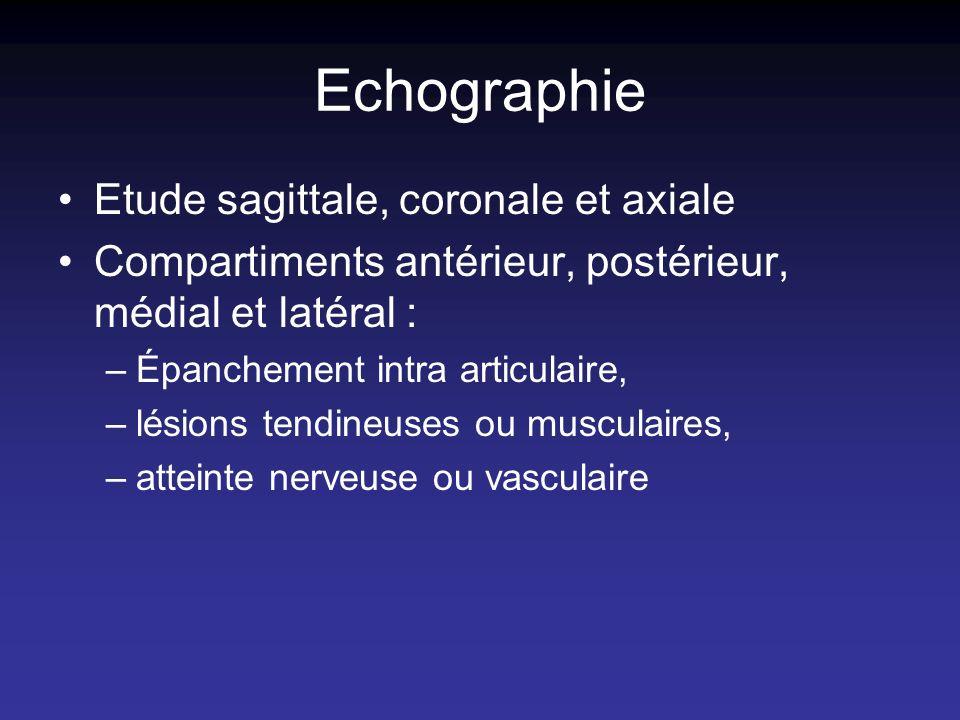 Echographie Etude sagittale, coronale et axiale Compartiments antérieur, postérieur, médial et latéral : –Épanchement intra articulaire, –lésions tend