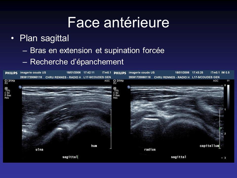 Face antérieure Plan sagittal –Bras en extension et supination forcée –Recherche dépanchement