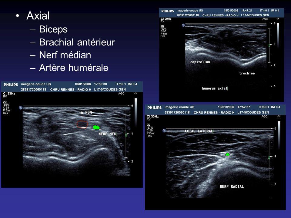 Axial –Biceps –Brachial antérieur –Nerf médian –Artère humérale