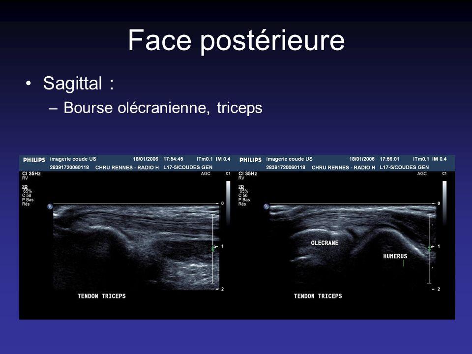 Face postérieure Sagittal : –Bourse olécranienne, triceps
