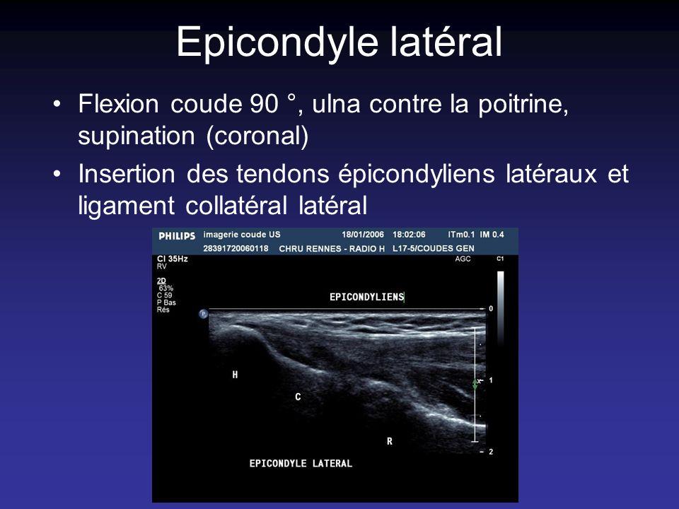 Epicondyle latéral Flexion coude 90 °, ulna contre la poitrine, supination (coronal) Insertion des tendons épicondyliens latéraux et ligament collatér