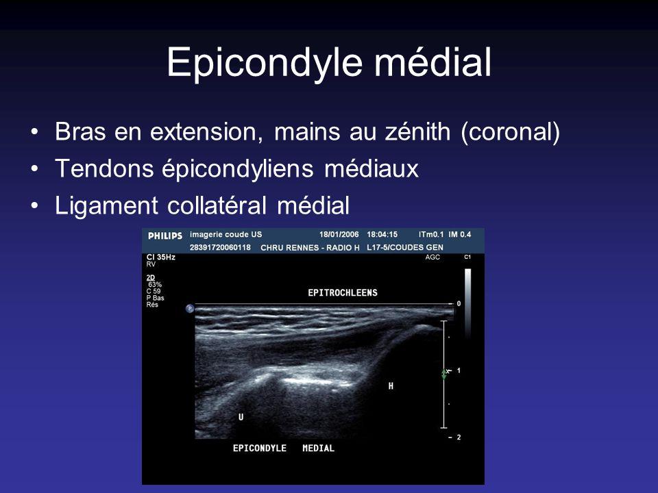 Epicondyle médial Bras en extension, mains au zénith (coronal) Tendons épicondyliens médiaux Ligament collatéral médial