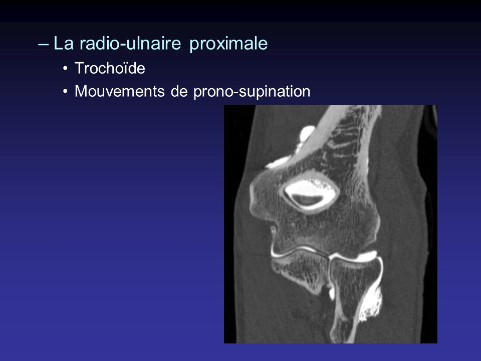 –La radio-ulnaire proximale Trochoïde Mouvements de prono-supination