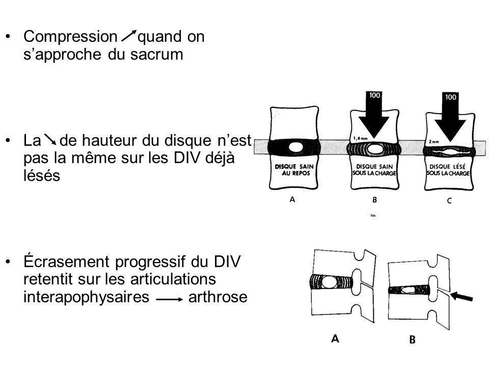 Compression quand on sapproche du sacrum La de hauteur du disque nest pas la même sur les DIV déjà lésés Écrasement progressif du DIV retentit sur les