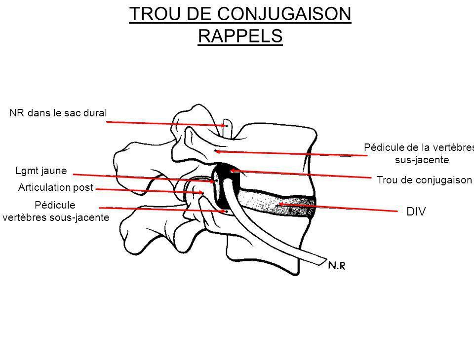 TROU DE CONJUGAISON RAPPELS Trou de conjugaison Pédicule de la vertèbres sus-jacente DIV Pédicule vertèbres sous-jacente Articulation post Lgmt jaune
