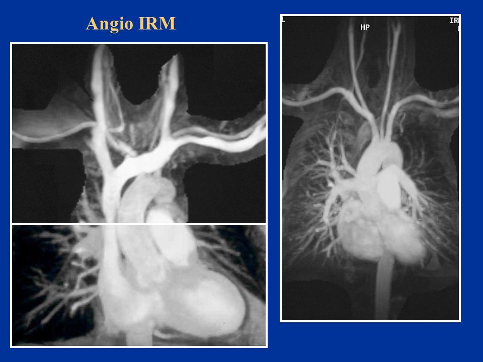 Angio IRM