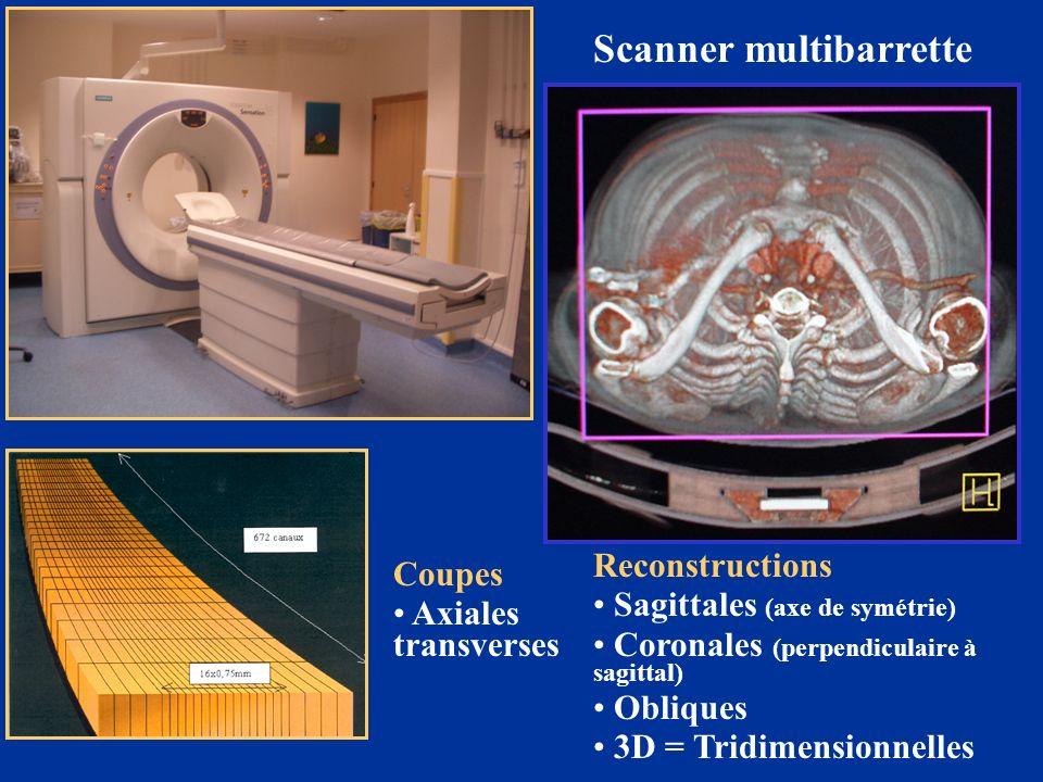 Scanner multibarrette Coupes Axiales transverses Reconstructions Sagittales (axe de symétrie) Coronales (perpendiculaire à sagittal) Obliques 3D = Tri