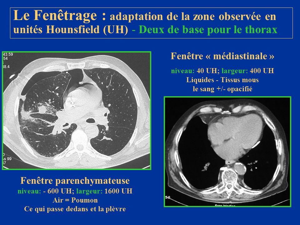 Le Fenêtrage : adaptation de la zone observée en unités Hounsfield (UH) - Deux de base pour le thorax Fenêtre parenchymateuse niveau: - 600 UH; largeu