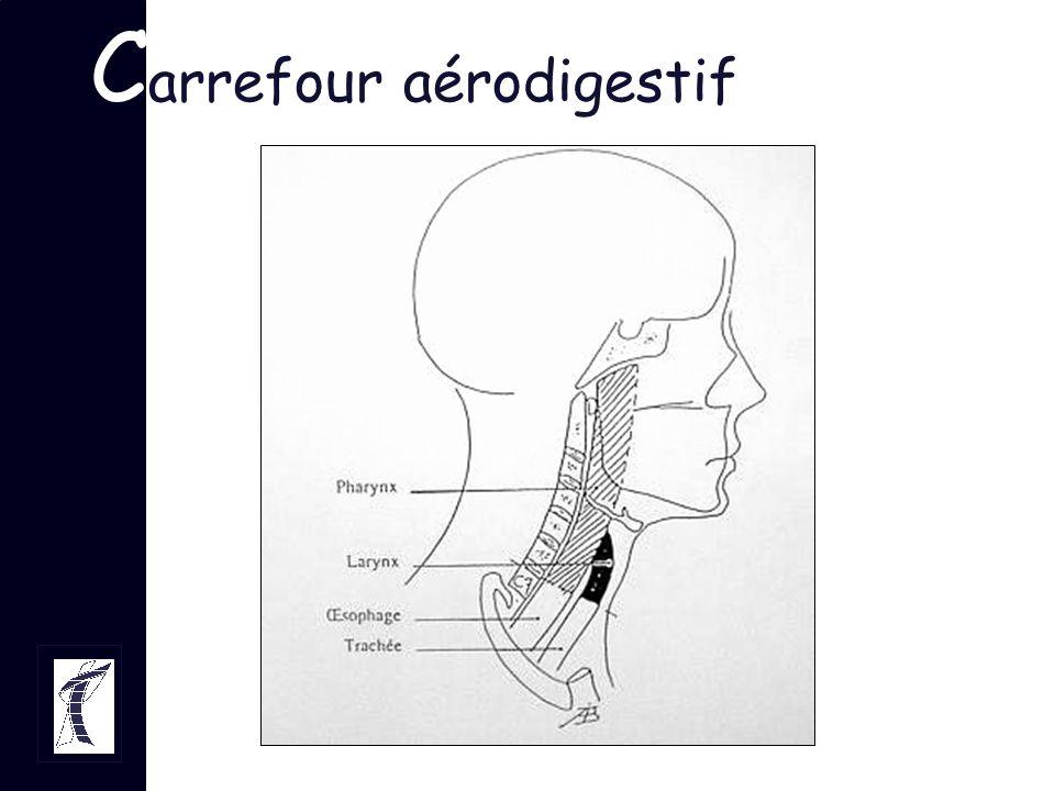 L arynx et déglutition Défaut de fermeture laryngée –troubles sensitifs –troubles moteurs: paralysie récurrentielle –atteinte élévation laryngée –chirurgie