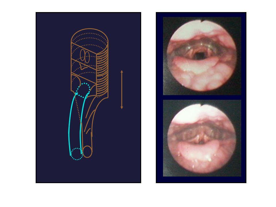 C harpente fibro-élastique Membranes élastiques –Cône vestibulaire: base entre les bords latéraux épiglotte et sommet aryténoïdes.