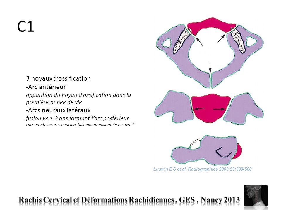 C2 4 centres dossification à la naissance : -Processus odontoïde issu de la fusion de deux noyaux à 7 semaines in utero noyau dossification secondaire à lapex (os terminale) apparaît entre 3 et 6 ans fusion vers 12 ans -Corps de C2 subdental synchondrosis (11 ans) -Arcs neuraux latéraux fusion postérieure vers 2-3 ans fusion antérieure vers 3-6 ans Lustrin E S et al.