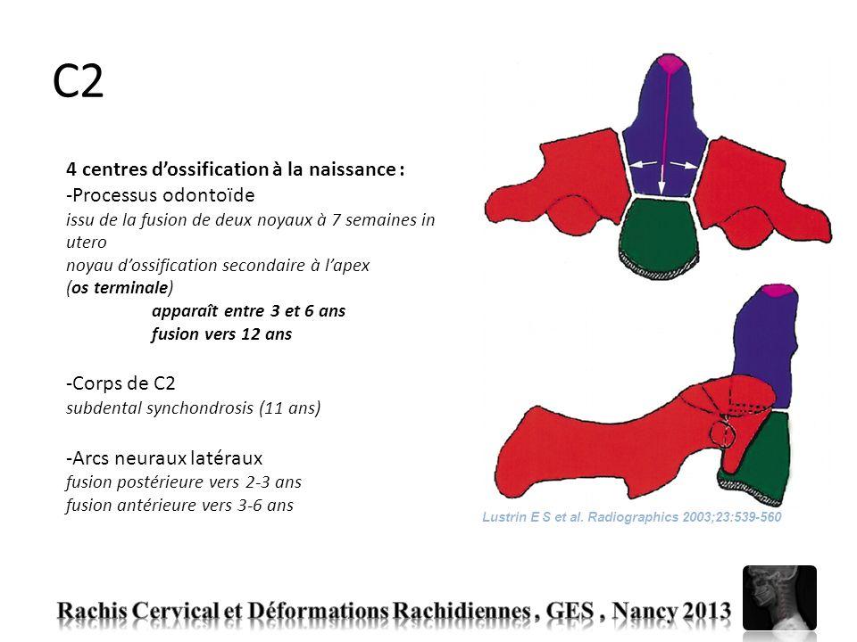 C2 4 centres dossification à la naissance : -Processus odontoïde issu de la fusion de deux noyaux à 7 semaines in utero noyau dossification secondaire