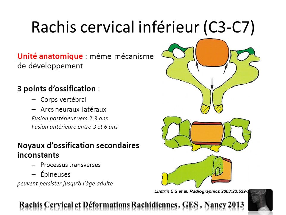 Rachis cervical inférieur (C3-C7) Unité anatomique : même mécanisme de développement 3 points dossification : – Corps vertébral – Arcs neuraux latérau