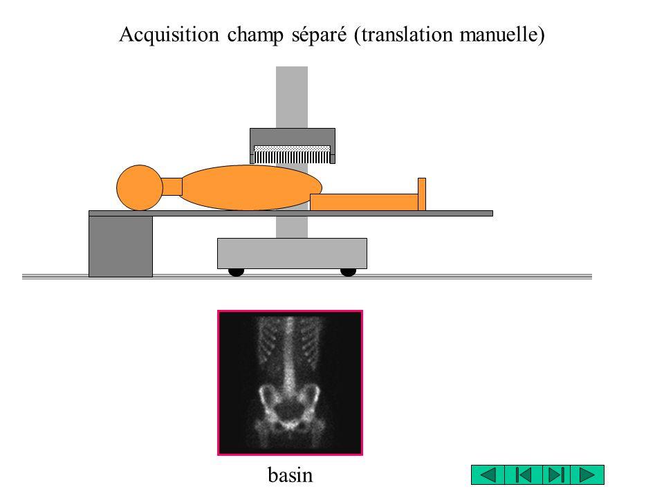 Acquisition champ séparé (translation manuelle) basin