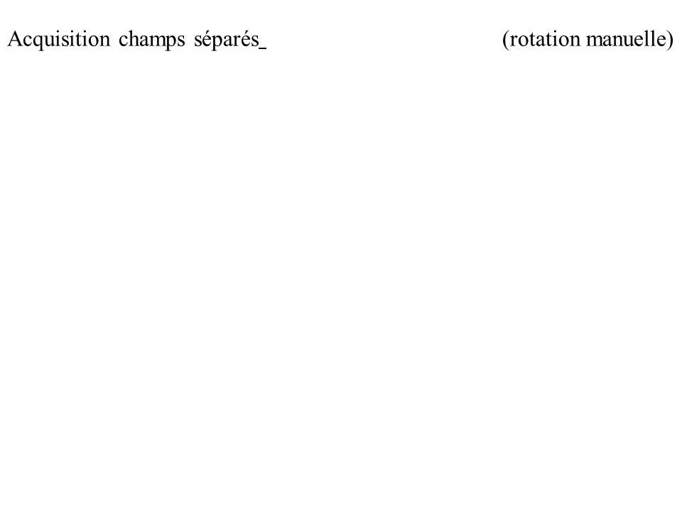 (rotation manuelle)Acquisition champs séparés