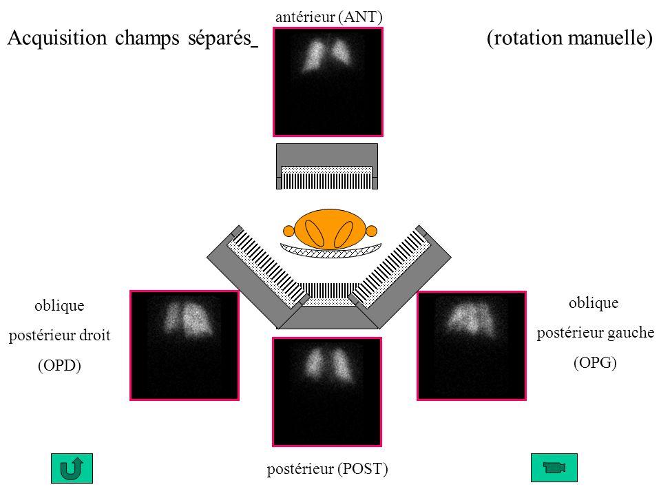 antérieur (ANT) oblique postérieur gauche (OPG) postérieur (POST) oblique postérieur droit (OPD) (rotation manuelle)Acquisition champs séparés