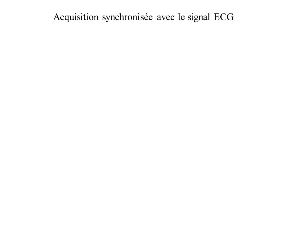 Acquisition synchronisée avec le signal ECG
