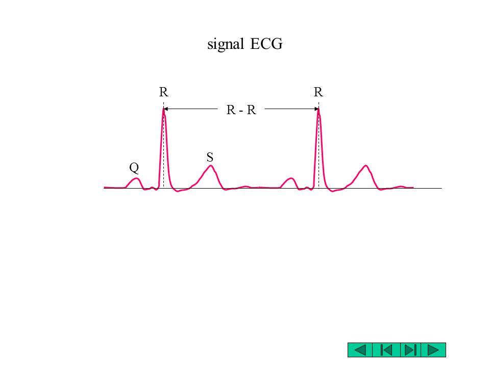 signal ECG RR R - R Q S