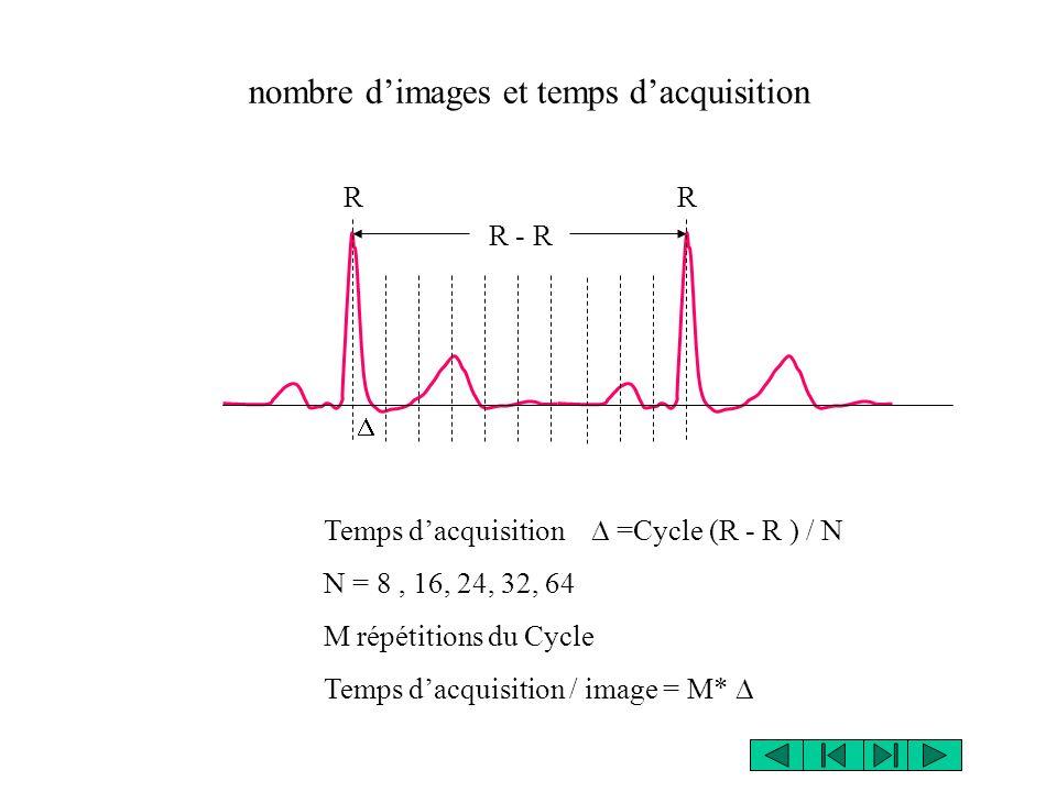nombre dimages et temps dacquisition RR R - R Temps dacquisition =Cycle (R - R ) / N N = 8, 16, 24, 32, 64 M répétitions du Cycle Temps dacquisition / image = M*