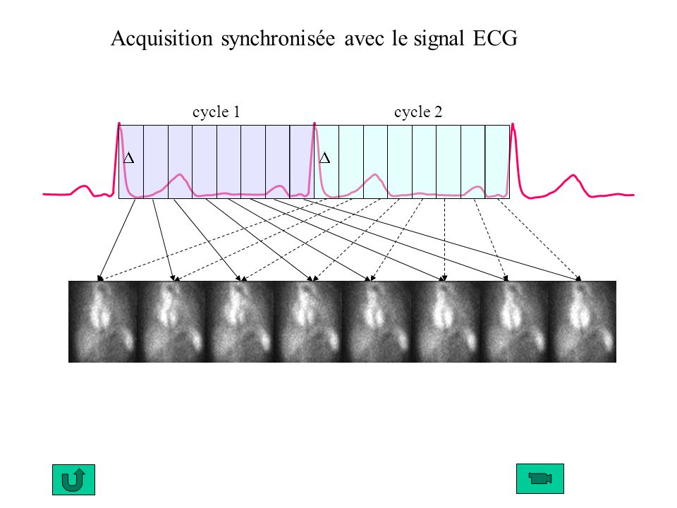 cycle 1 cycle 2 Acquisition synchronisée avec le signal ECG