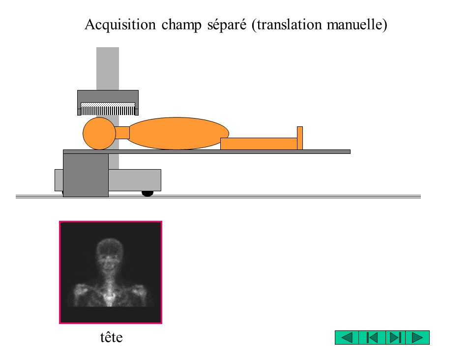Acquisition champ séparé (translation manuelle) tête