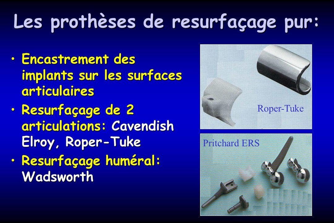 Les prothèses de resurfaçage pur: Encastrement des implants sur les surfaces articulairesEncastrement des implants sur les surfaces articulaires Resurfaçage de 2 articulations: Cavendish Elroy, Roper-TukeResurfaçage de 2 articulations: Cavendish Elroy, Roper-Tuke Resurfaçage huméral: WadsworthResurfaçage huméral: Wadsworth Roper-Tuke Pritchard ERS