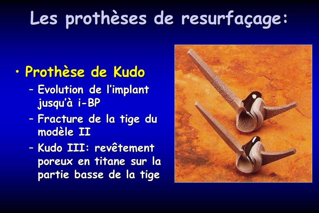 Les prothèses de resurfaçage: Prothèse de KudoProthèse de Kudo –Evolution de limplant jusquà i-BP –Fracture de la tige du modèle II –Kudo III: revêtement poreux en titane sur la partie basse de la tige