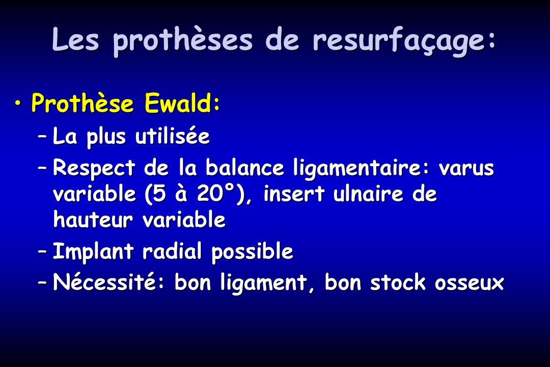 Les prothèses de resurfaçage: Prothèse Ewald:Prothèse Ewald: –La plus utilisée –Respect de la balance ligamentaire: varus variable (5 à 20°), insert ulnaire de hauteur variable –Implant radial possible –Nécessité: bon ligament, bon stock osseux