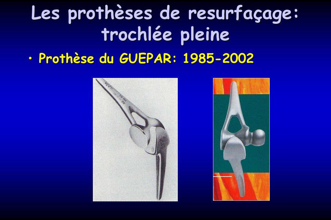 Les prothèses de resurfaçage: trochlée pleine Prothèse du GUEPAR: 1985-2002Prothèse du GUEPAR: 1985-2002