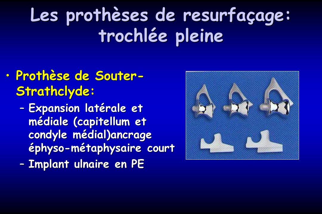 Les prothèses de resurfaçage: trochlée pleine Prothèse de Souter- Strathclyde:Prothèse de Souter- Strathclyde: –Expansion latérale et médiale (capitellum et condyle médial)ancrage éphyso-métaphysaire court –Implant ulnaire en PE