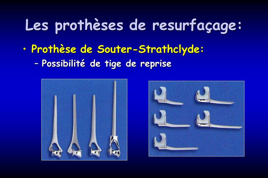 Les prothèses de resurfaçage: Prothèse de Souter-Strathclyde:Prothèse de Souter-Strathclyde: –Possibilité de tige de reprise