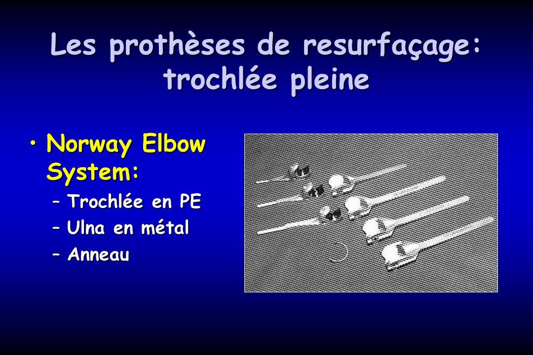 Les prothèses de resurfaçage: trochlée pleine Norway Elbow System:Norway Elbow System: –Trochlée en PE –Ulna en métal –Anneau