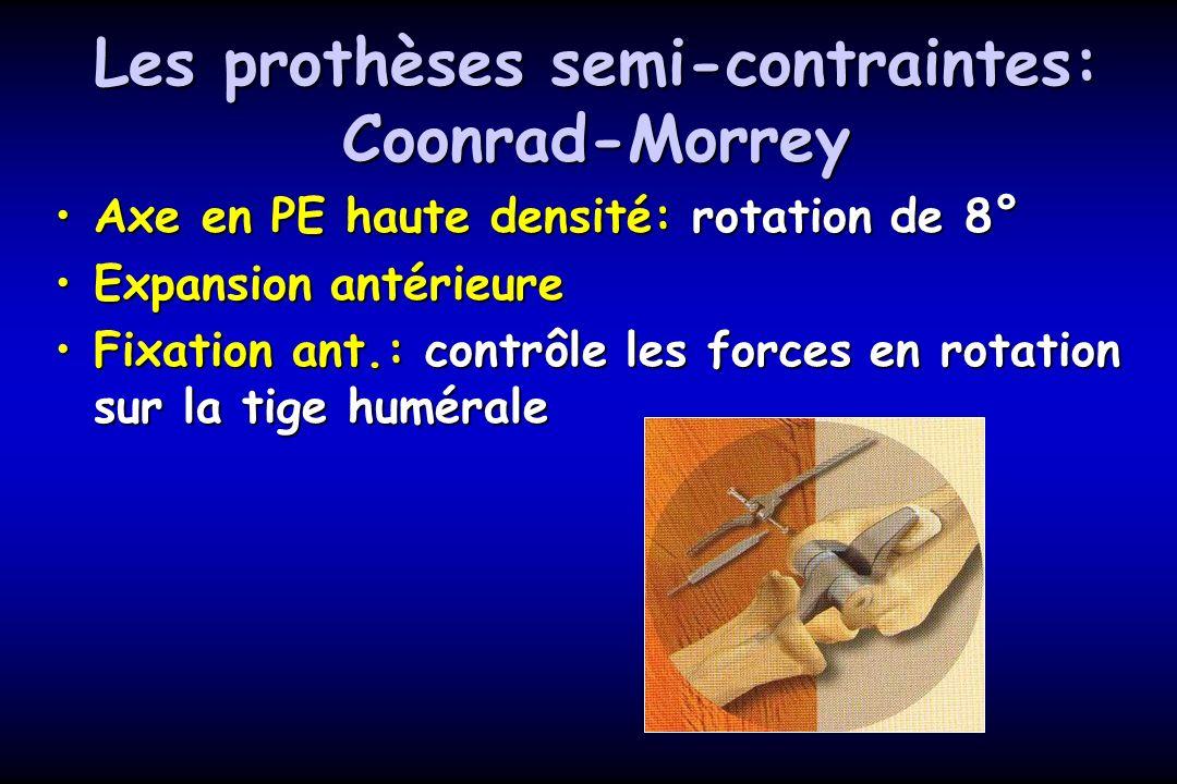 Les prothèses semi-contraintes: Coonrad-Morrey Axe en PE haute densité: rotation de 8°Axe en PE haute densité: rotation de 8° Expansion antérieureExpansion antérieure Fixation ant.: contrôle les forces en rotation sur la tige huméraleFixation ant.: contrôle les forces en rotation sur la tige humérale