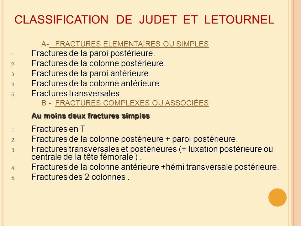 CLASSIFICATION DE JUDET ET LETOURNEL A- FRACTURES ELEMENTAIRES OU SIMPLES 1. Fractures de la paroi postérieure. 2. Fractures de la colonne postérieure