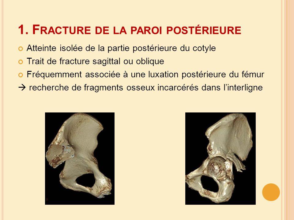 1. F RACTURE DE LA PAROI POSTÉRIEURE Atteinte isolée de la partie postérieure du cotyle Trait de fracture sagittal ou oblique Fréquemment associée à u