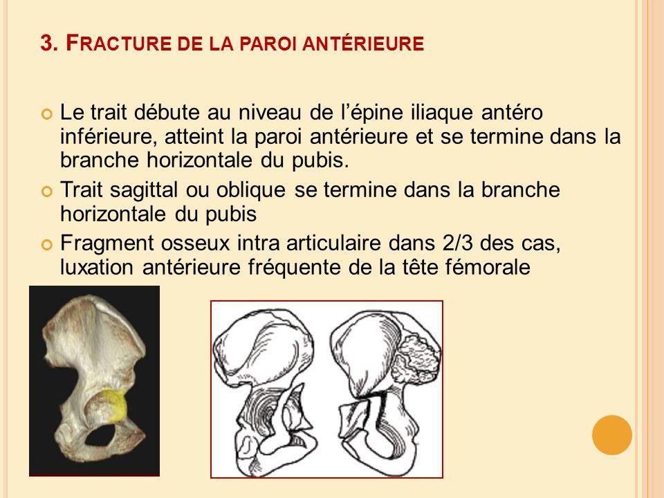 3. F RACTURE DE LA PAROI ANTÉRIEURE Le trait débute au niveau de lépine iliaque antéro inférieure, atteint la paroi antérieure et se termine dans la b