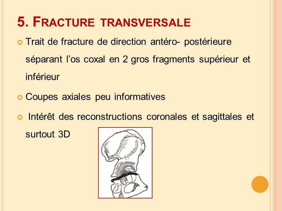 5. F RACTURE TRANSVERSALE Trait de fracture de direction antéro- postérieure séparant los coxal en 2 gros fragments supérieur et inférieur Coupes axia