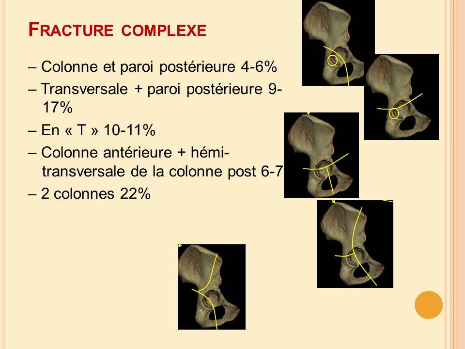F RACTURE COMPLEXE – Colonne et paroi postérieure 4-6% – Transversale + paroi postérieure 9- 17% – En « T » 10-11% – Colonne antérieure + hémi- transv