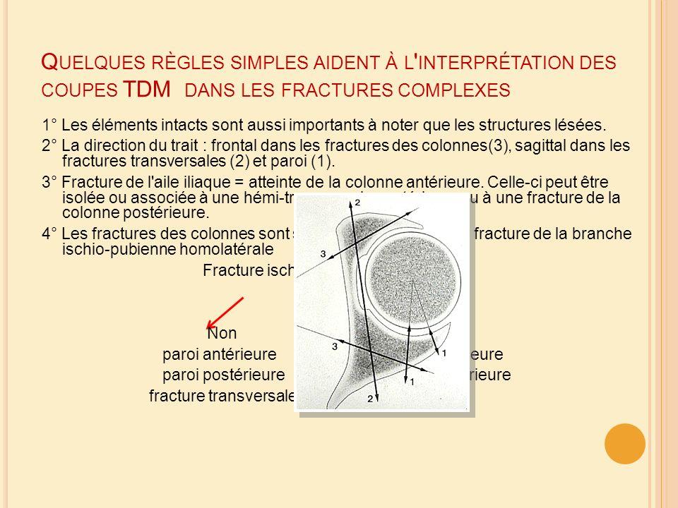Q UELQUES RÈGLES SIMPLES AIDENT À L ' INTERPRÉTATION DES COUPES TDM DANS LES FRACTURES COMPLEXES 1° Les éléments intacts sont aussi importants à noter
