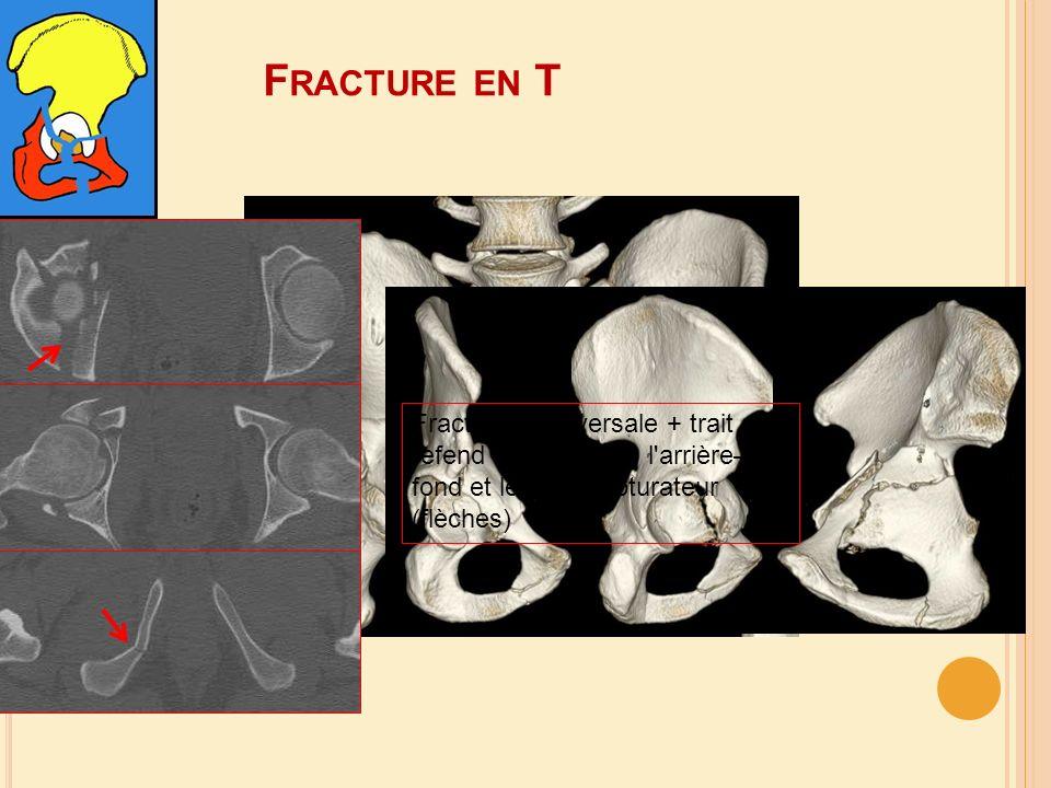 F RACTURE EN T Fracture transversale + trait de refend vertical dans l'arrière– fond et le cadre obturateur (flèches)