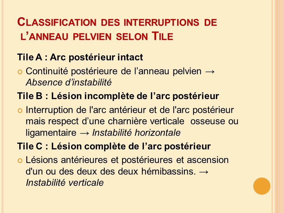 C LASSIFICATION DES INTERRUPTIONS DE L ANNEAU PELVIEN SELON T ILE Tile A : Arc postérieur intact Continuité postérieure de lanneau pelvien Absence din