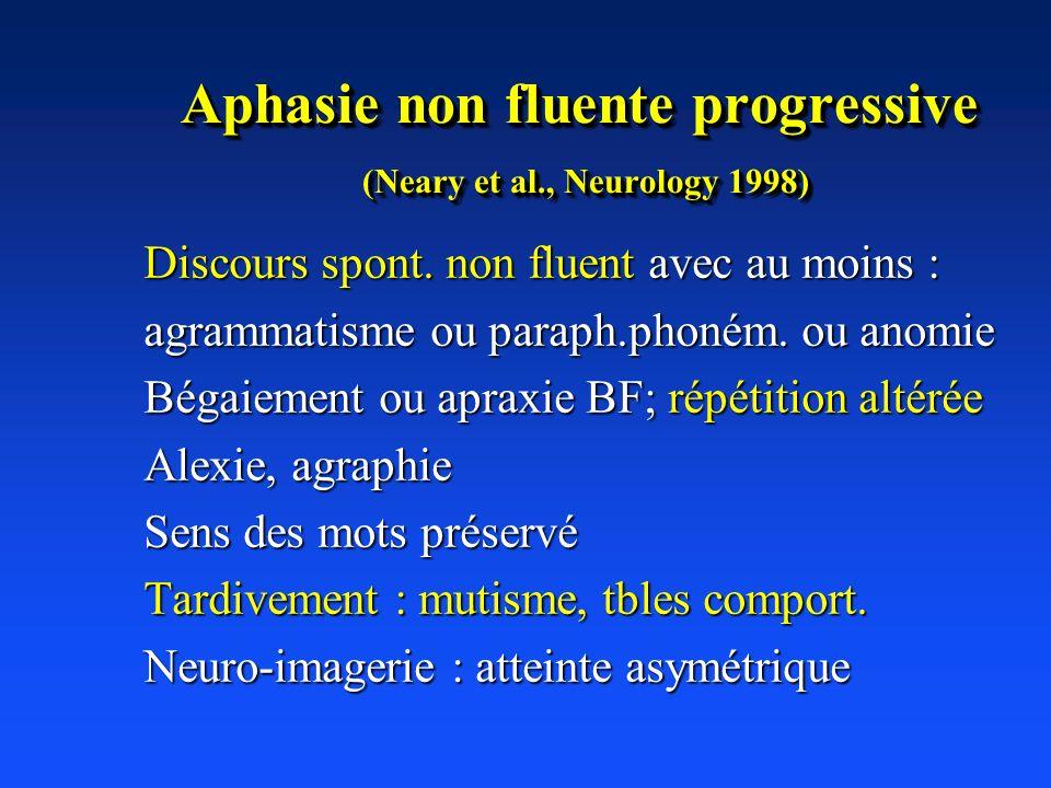 Aphasie non fluente progressive (Neary et al., Neurology 1998) Discours spont. non fluent avec au moins : agrammatisme ou paraph.phoném. ou anomie Bég