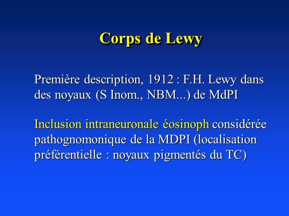 Première description, 1912 : F.H. Lewy dans des noyaux (S Inom., NBM...) de MdPI Inclusion intraneuronale éosinoph considérée pathognomonique de la MD