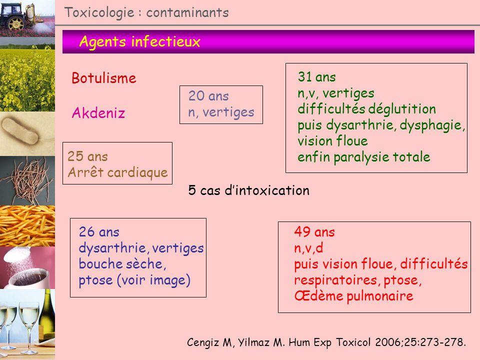 Agents infectieux Toxicologie : contaminants Botulisme Akdeniz Cengiz M, Yilmaz M. Hum Exp Toxicol 2006;25:273-278. 5 cas dintoxication 31 ans n,v, ve